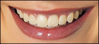 Before Whitening