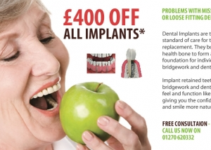£400 off all implants
